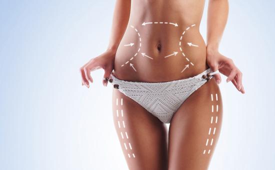 Chirurgia del corpo: liposcultura/liposuzione