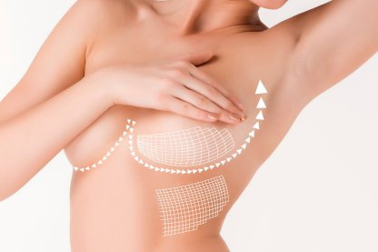 Chirurgia del seno: mastopessi