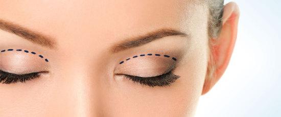 Chirurgia del viso: blefaroplastica