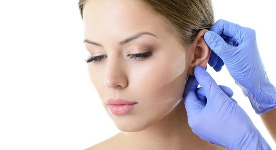 Chirurgia del viso: otoplastica